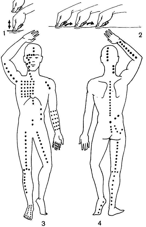 Акупунктурные точки при лечении простатита
