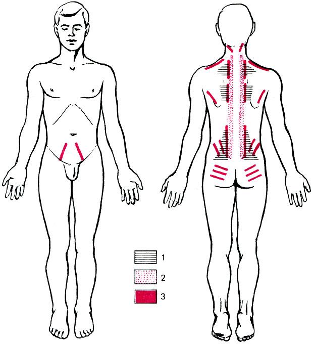 узи тазобедренных суставов расшифровка 1a