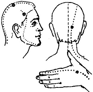 Может ли грудь болеть из-за спирали