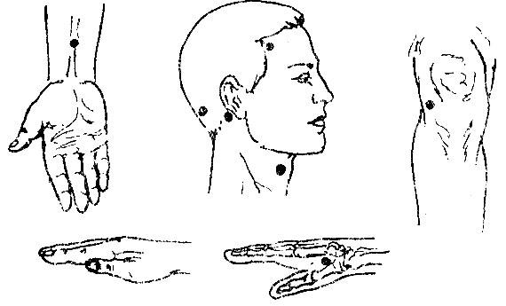 Гипертония степени, симптомы, причины и диагностика
