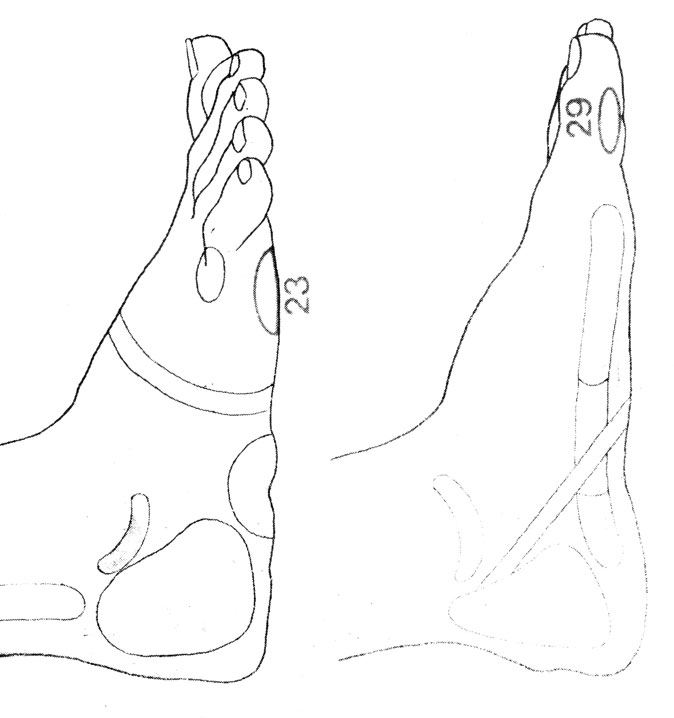Рефлекторные зоны на стопе: надлопаточная зона (23), затылок (29)