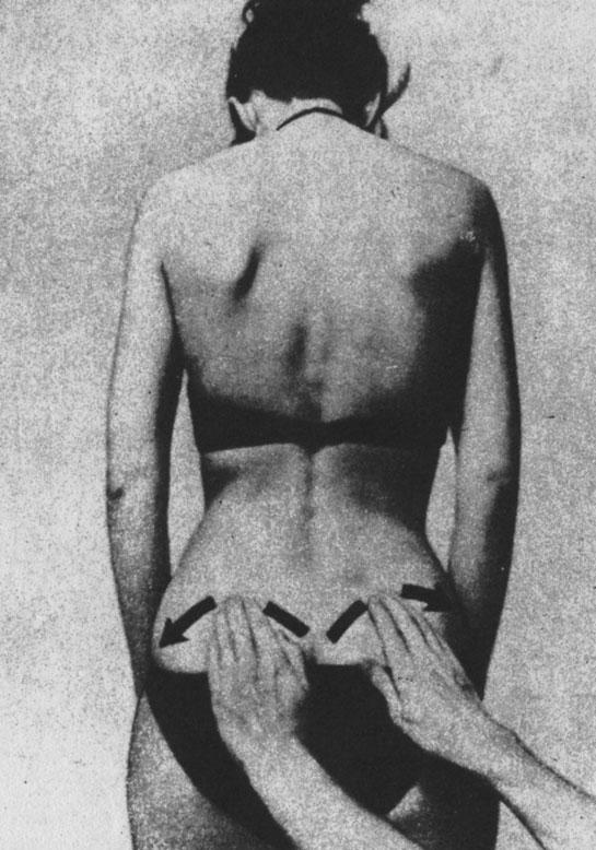 Поглаживающий массаж выпуклого края тазовой кости (в неострой стадии заболевания)