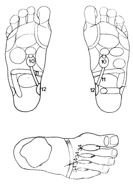 Рефлекторные зоны на стопе: почки (10), мочеточники (11), мочевой пузырь (12), лимфоточки (34)