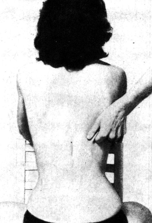 Разминающий массаж зоны печени на спине