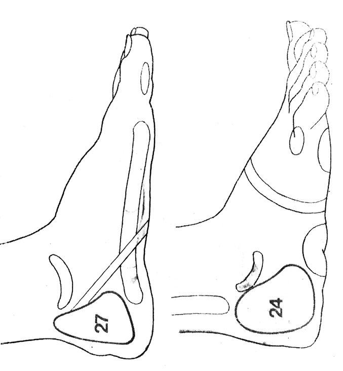 Рефлекторные зоны на стопе: яичники (24), матка (27)