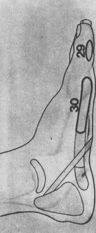 Рефлекторные зоны на стопе: шейный отдел позвоночника (29), грудной отдел позвоночника (30), массировать обе стопы