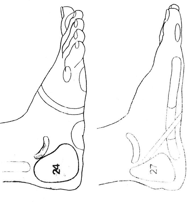 Рефлекторные зоны на стопе: желудок (7), кишечник (13, 14, 15, 16), печень - желчный пузырь (22). У женщин дополнительно массируются зоны: фаллопиевых труб (24) и матки (27)